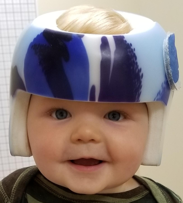 cranial remolding helmets sleep surfaces for plagiocephaly